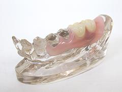 インプラント併用入れ歯