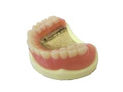6.完成の金属床の入れ歯